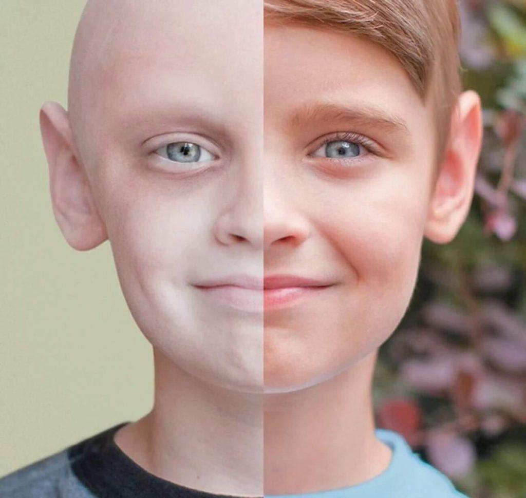 Лечение рака в лу
